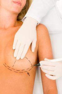 breast implant markings