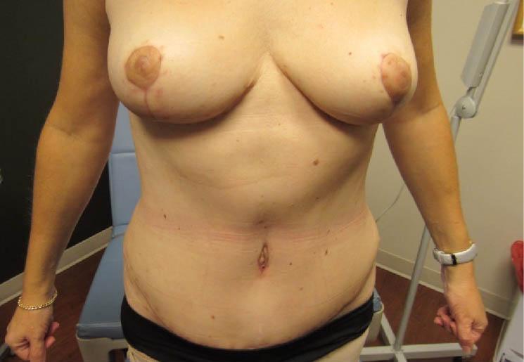Abdominoplasty After
