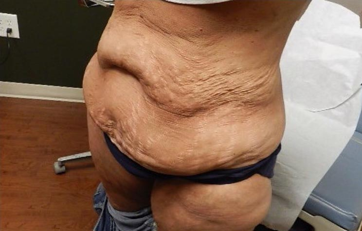 Bariatric Before