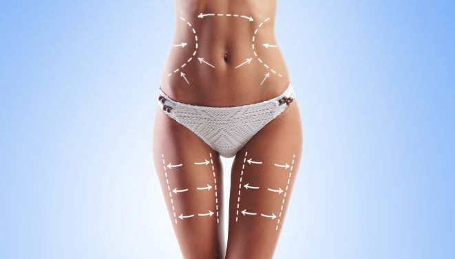 Coolsculpt vs Sculpsure Tricities, TN