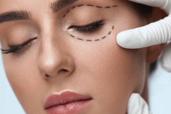 Top 5 Myths About Facial Rejuvenation