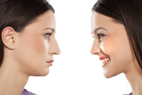 What is Rhinoplasty? Types of Nose Surgery